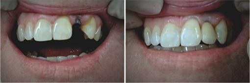 efekty leczenie implantologicznego