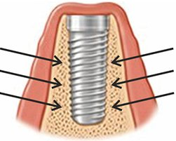 gojenie się implantu zębowego