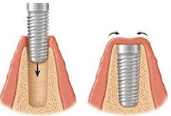 wszczepienie implantu zębowego