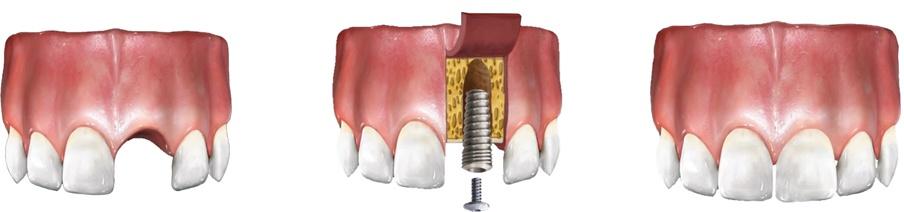 brak pojedynczego zęba