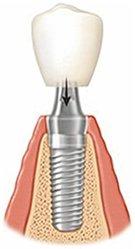 założenie korony zęba na implant stomatologiczny